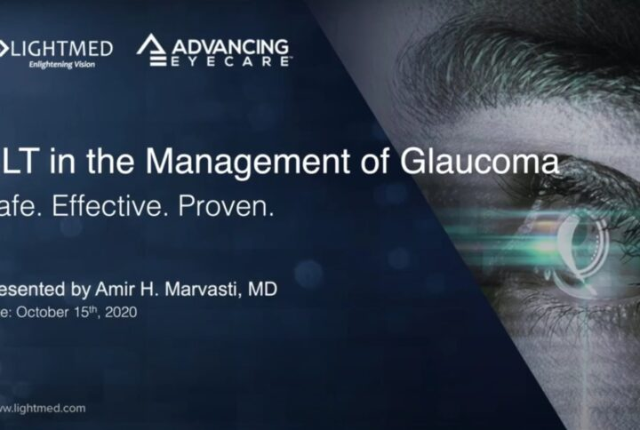 SLT in the Management of Glaucoma